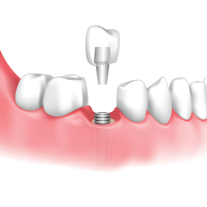 Implant Crowns - Dental Services