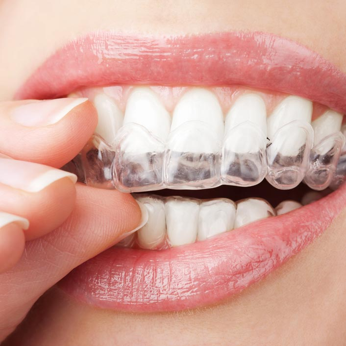Invisalign® - Dental Services